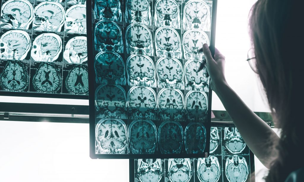 Nuevos métodos permitirían mejorar el diagnóstico y tratamientos más precisos del Alzheimer
